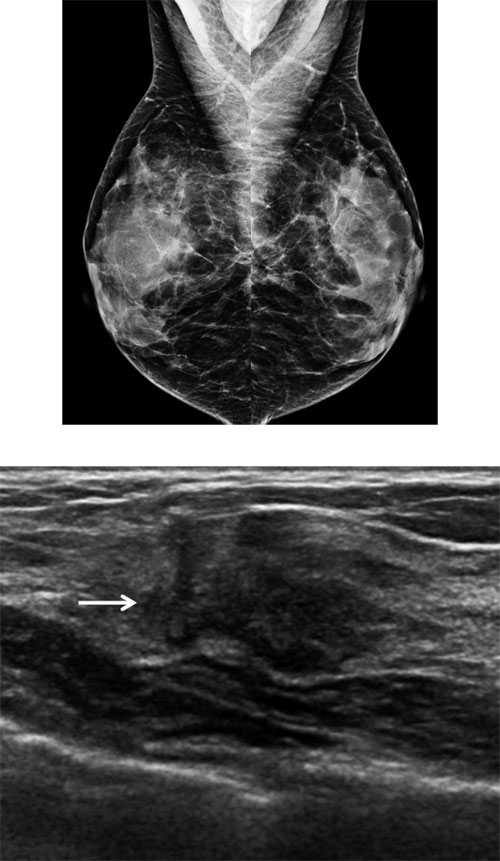 Figure 2.  Mammograms from this 46-year-old woman appear normal with heterogeneously dense tissue. Four months later, the woman noted a right breast lump. On ultrasound directed to the lump, an irregular mass (arrow) was identified that is highly suggestive of cancer. Ultrasound-guided core needle biopsy showed aggressive invasive ductal cancer which was not seen even in retrospect on the mammogram. (Courtesy Dr. Wendie Berg)